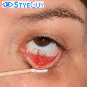 Lower Eyelid Stye